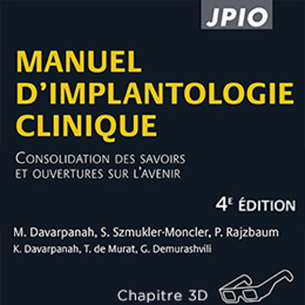 manuel d'implantologie clinique 4è édition
