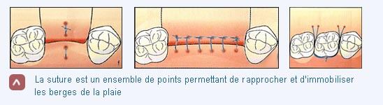 suture en chirurgie implantaire