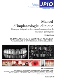 implantologie clinique